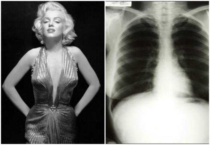 Рентген Мэрлин Монро за 45000 долларов.