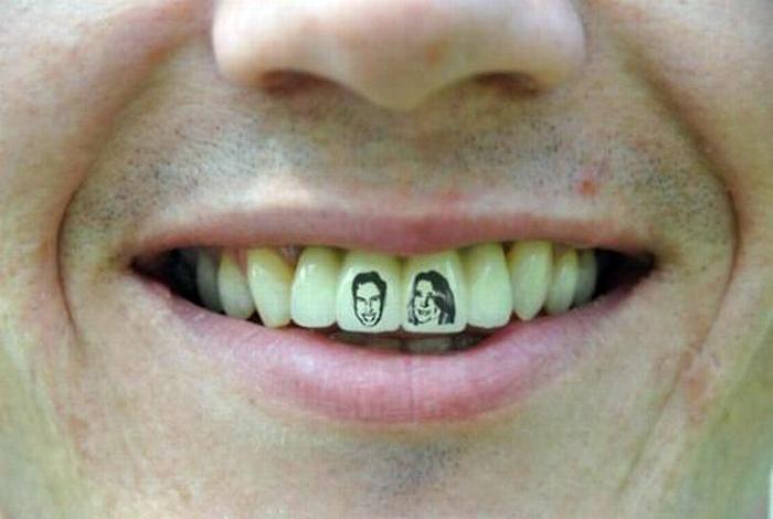 Татуировки на зубах.