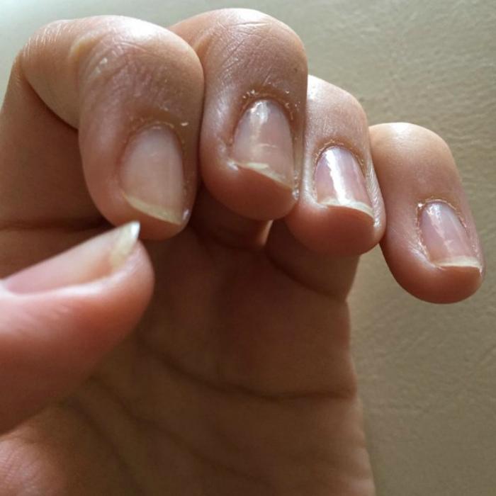 Неухоженные ногти и отсутствие маникюра.