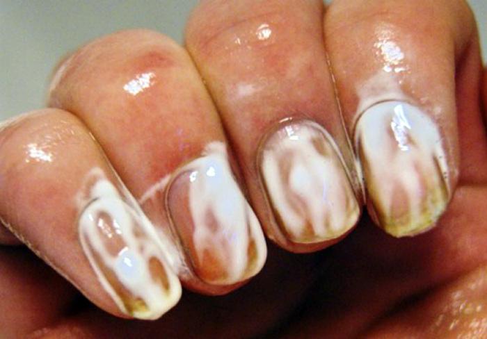 Отбелить ногтевые пластины.