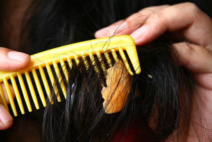 Жвачка в волосах. | Фото: Chistyulka.ru.