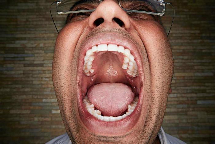Виджей Кумар В.А. из Индии имеет 37 зубов.