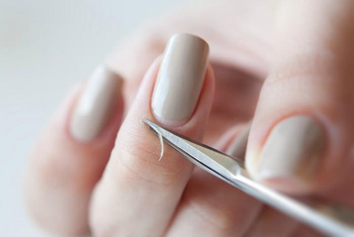 Чрезмерное увлечение обрезным маникюром. | Фото: Doctor Eskin.
