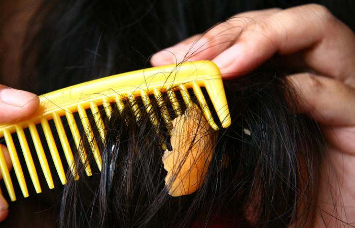 Жевательная резинка в волосах.