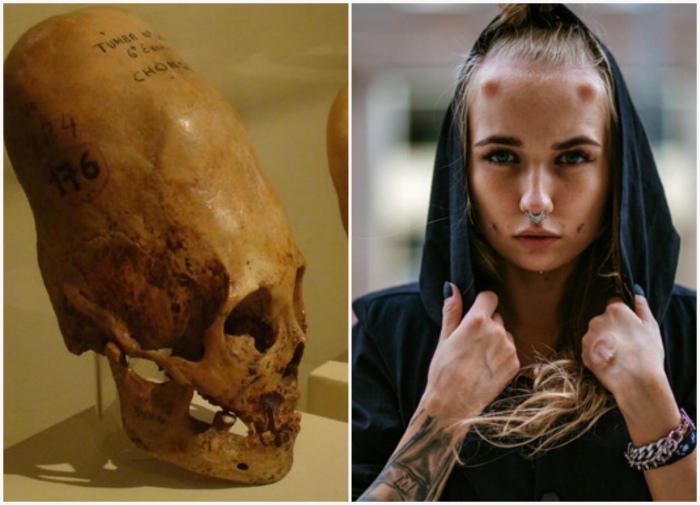 Искусственные модификации черепа. | Фото: The Flow, BlogNews.am.