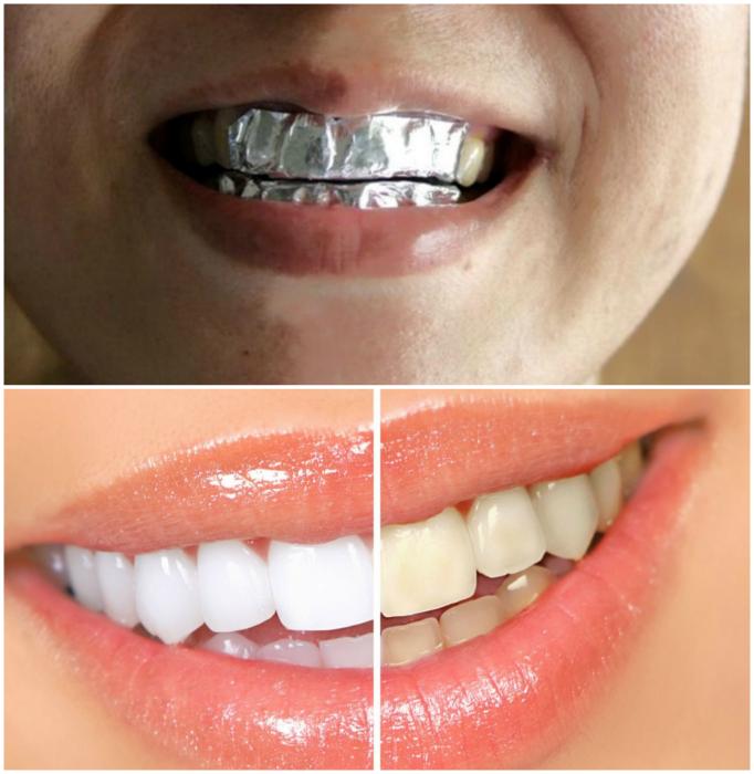 Отбеливание зубов.