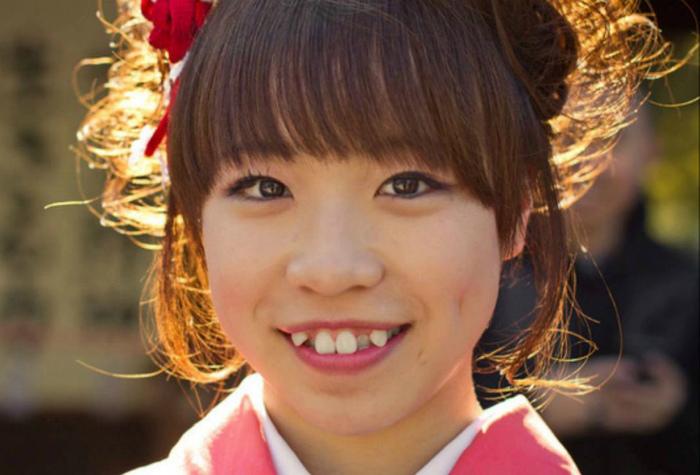 Кривые зубы в Японии.