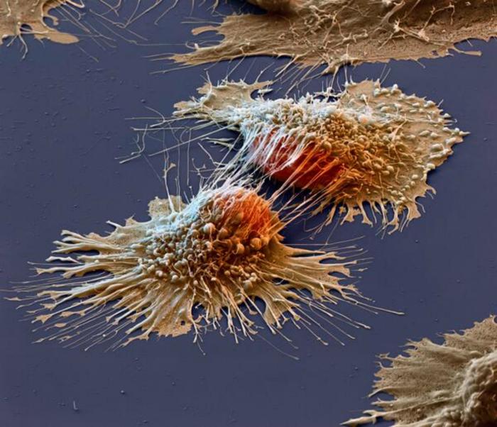 Снимок раковых клеток под электронным микроскопом.