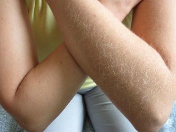 Обесцвечивание волос на теле. | Фото: Блеск, красота и здоровье волос.