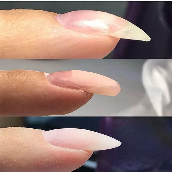 Не выравнивание клюющих ногтей. | Фото: Gramho.com.
