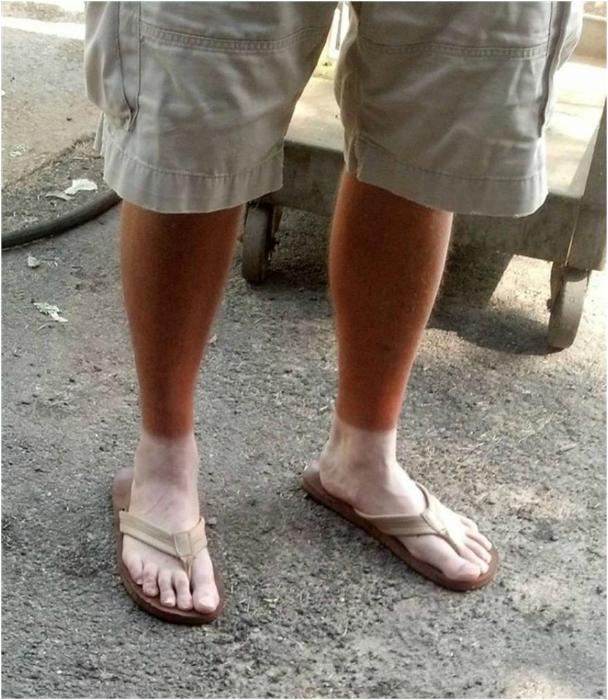 Белоснежные ступни.