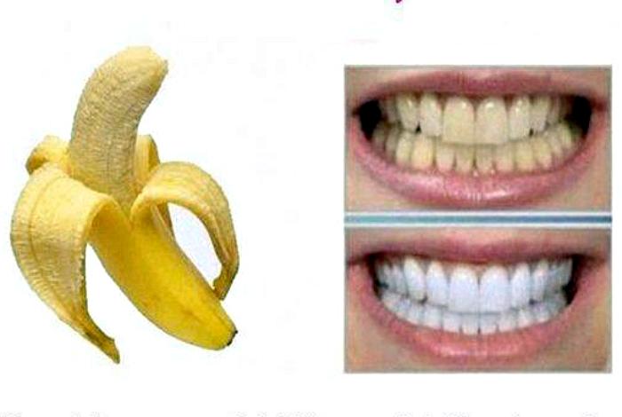 Как отбелить зубы бананом отзывы