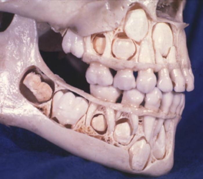 Так выглядит детский череп до смены зубов.