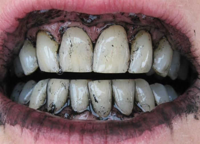 Простое отбеливание зубов.