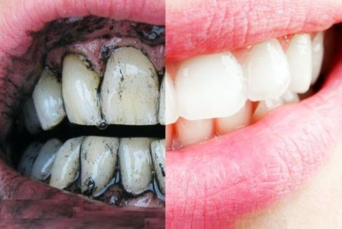 Доступное отбеливание зубов.