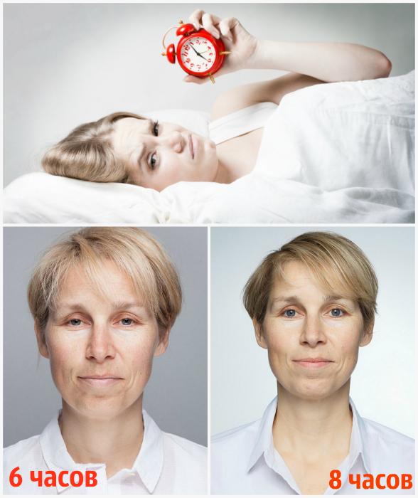 Хронический недосып.