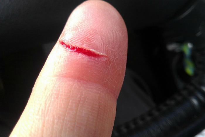 Використання гірчиці при невеликих порізах.