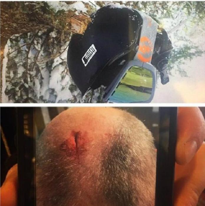 Несчастный случай со сноубордистом.