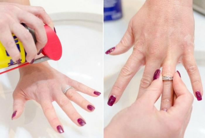 Снять тугое кольцо. | Фото: TrendsCatchers.de.