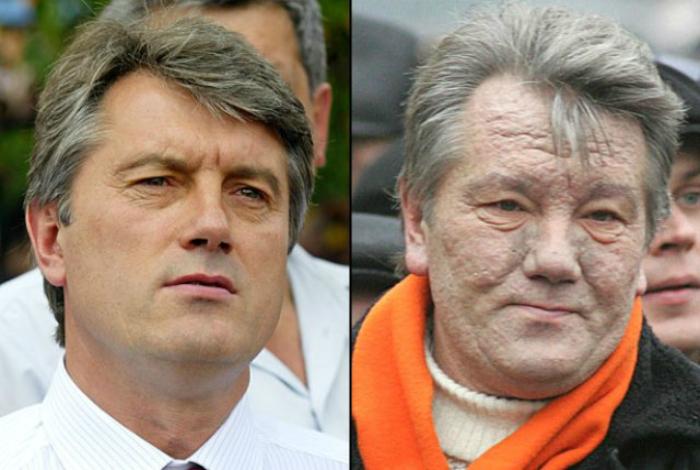 Лицо Виктора Ющенка до и после отравления.