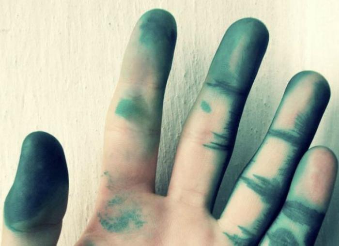 Пятна зеленки на руках.