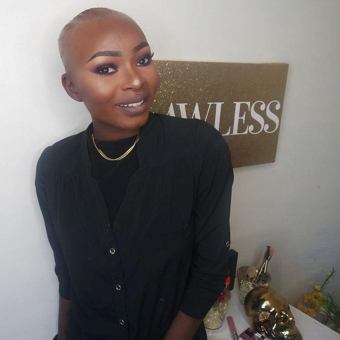 Из-за несчастного случая девушка потеряла почти все волосы