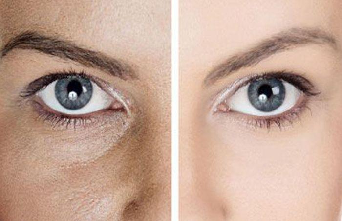 Как бороться с широкими порами на лице?