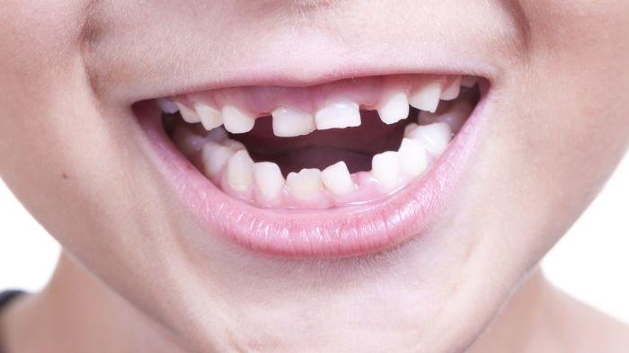 Детские зубы и стронций-90