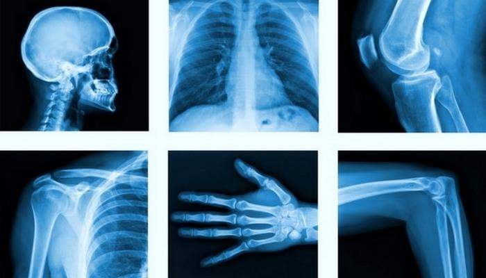 Прорыв в медицине: рентген.