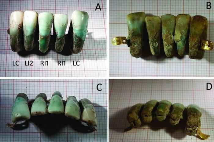 Самые древние зубные протезы.