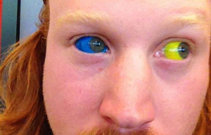 Инъекции пигмента в белок человеческого глаза.