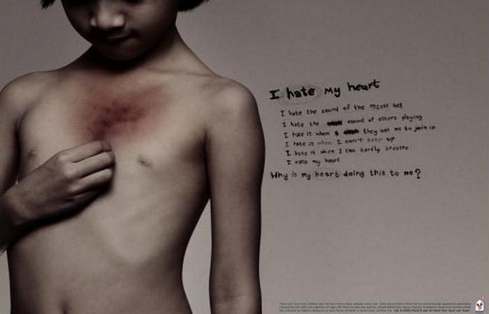 Фаст-фуд -  это болезни сердца.