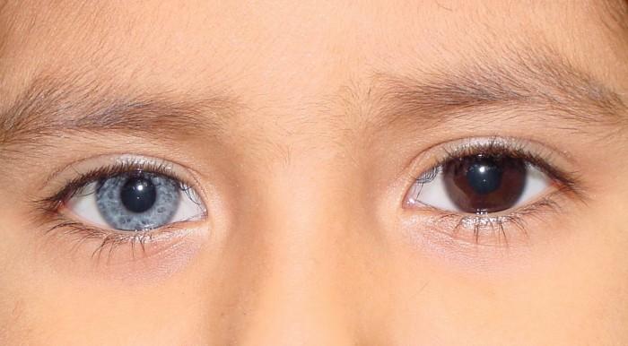 Такие разные глаза.