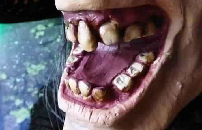Протезы из «живых» зубов.