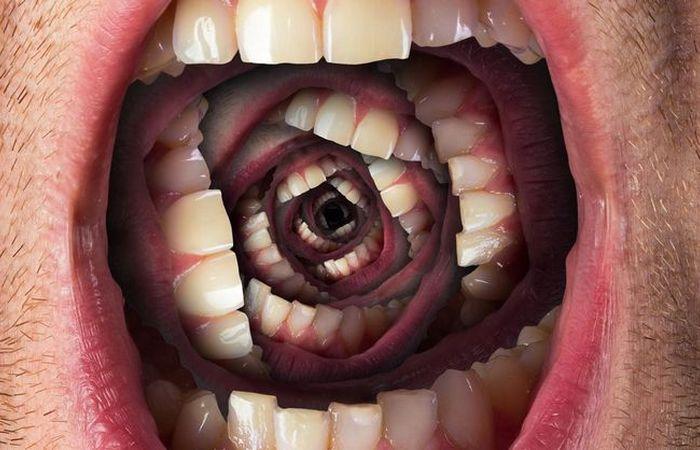 Ночной кошмар: «Потеря зубов».