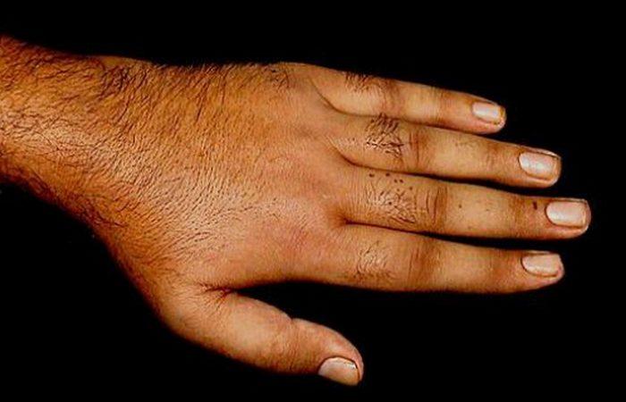 Месяц без душа: могут развиться различные дерматиты.