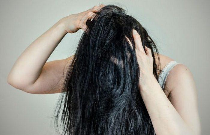 Месяц без душа: появится зуд волосистой части головы.