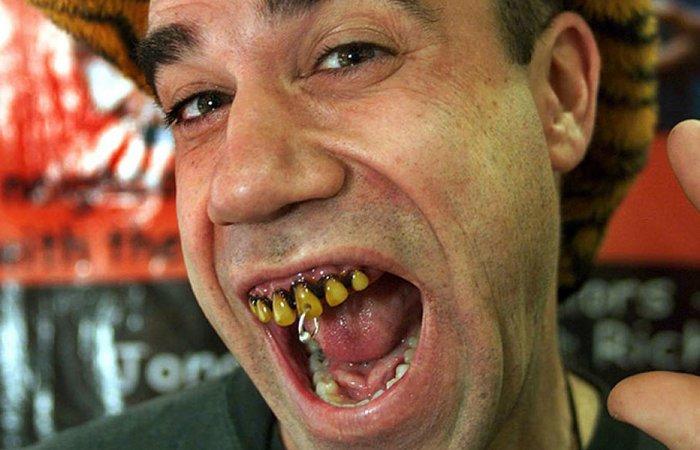 Странно, но прибыльно: зубы «Billy-Bob».