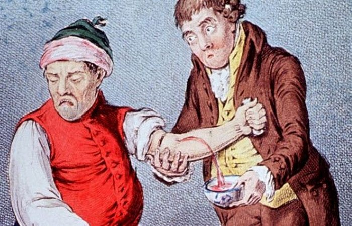 Жуткая медицинская практика: кровопускание.