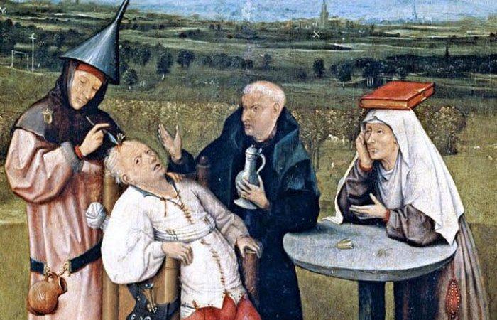 Жуткая медицинская практика: трефинация.