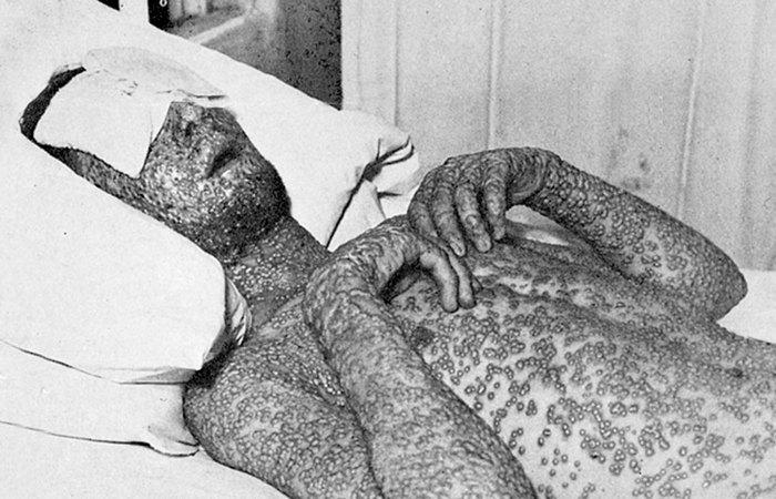 Человек инфицированный оспой.
