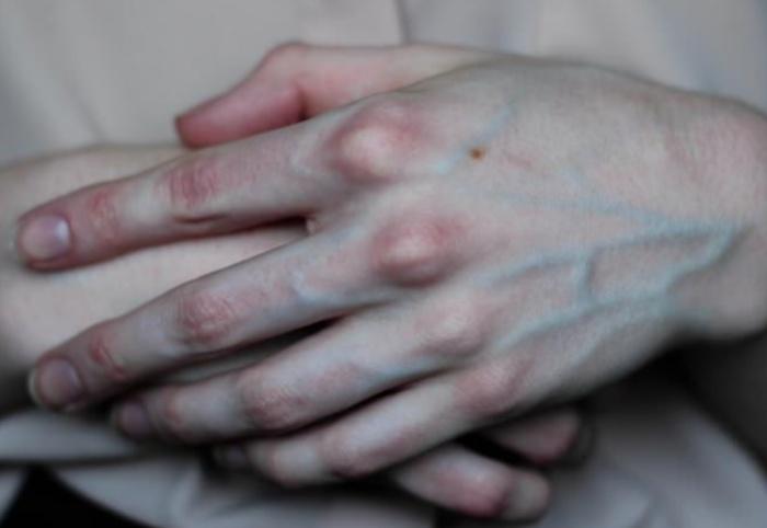 Когда кожа белая и чистая - вены видны очень хорошо. /Фото: obozrevatel.com.