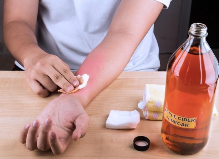 Сода помогает от ожогов. /Фото: balproton.ru.