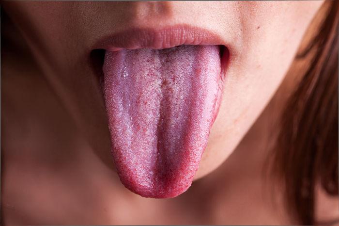 Язык - рассадник бактерий. /Фото: memrise.com.