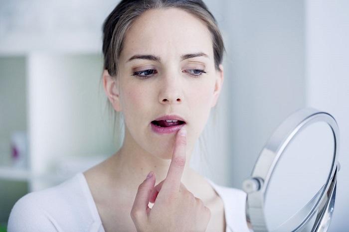 10 SOS-рецептов для обветренных губ из домашних средств/
