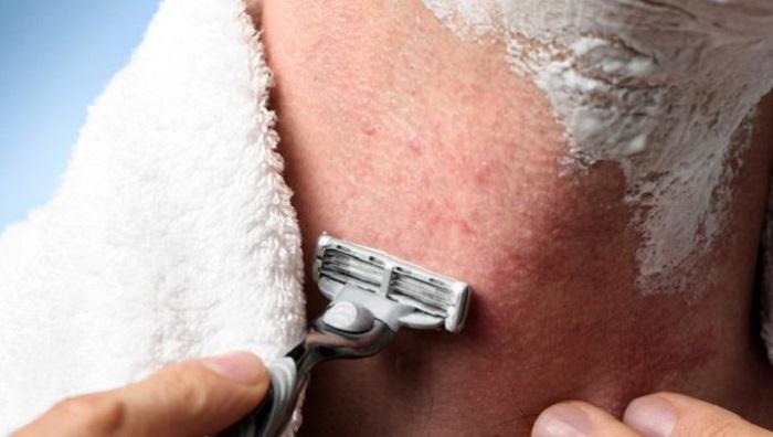 Как поступить с раздражением после бритья.