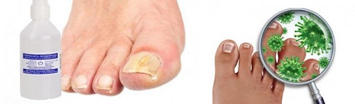 Рецепт избавления грибка ногтей – из перекиси. Для снижения развития грибка обрабатывайте пораженный участок перекисью дважды в день.