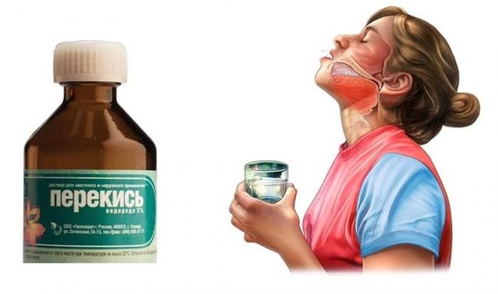 Ополаскивание рта перекисью может уничтожить бактерии - виновников инфекционных заболеваний десен и зубов (кариеса, стоматита, пародонтита). Для полоскания используют 3% раствор. И главное - не глотать!