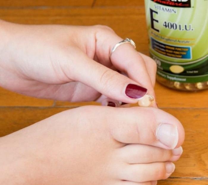 Нанесение витамина С.