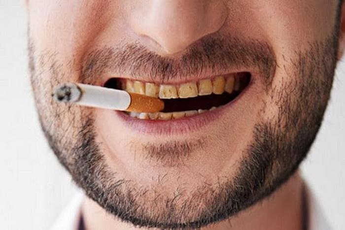 Улыбка курильщика.